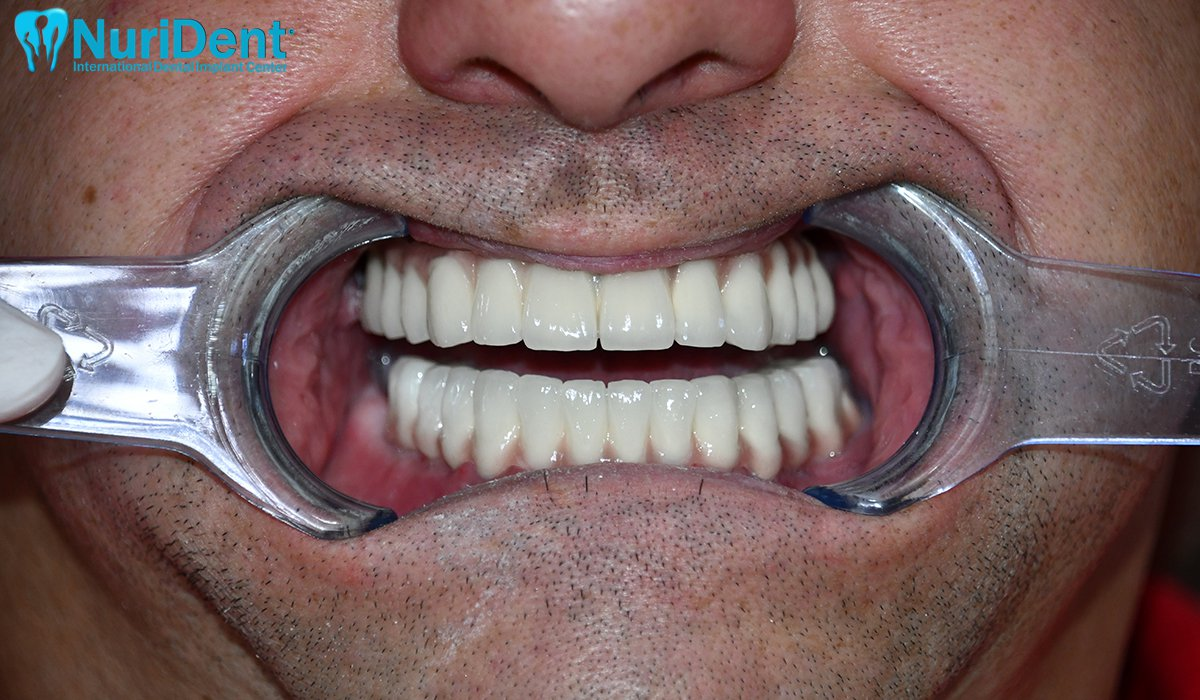 basal implant dental implant nurident